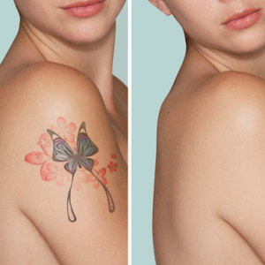 Capri Beauty tattoo removal