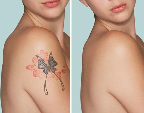 Capri Beauty tattoo removal